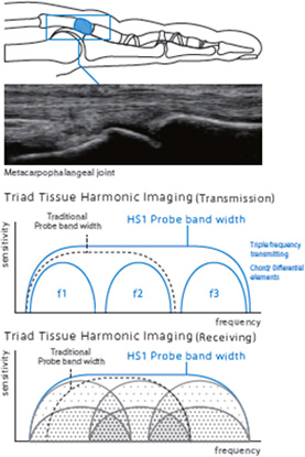 harmonics ultra-broadband harmonic imaging