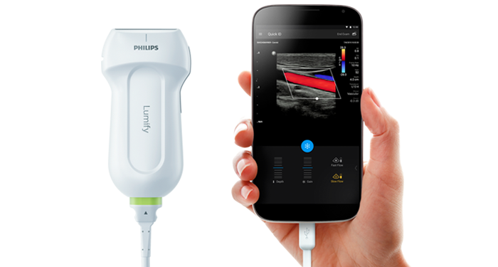 Philips Lumify Portable Ultrasound Solution